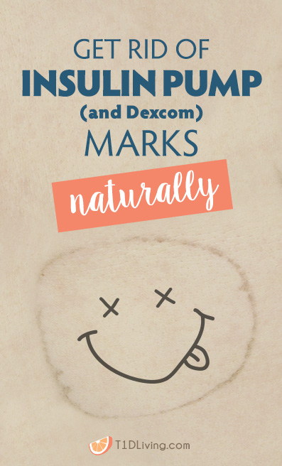 Get rid of insulin pump marks naturally-pinterest