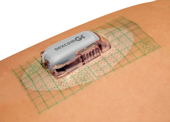 Get Dexcom To Stick Medical Tape