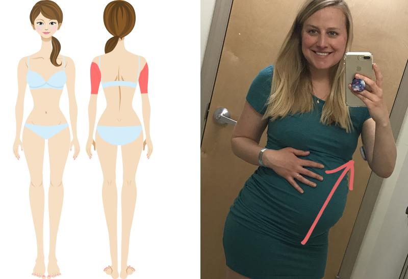 favorite-pump-sites-pregnancy-back-of-arm